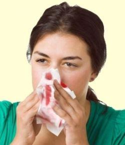 Почему из носа течет кровь - основые причины
