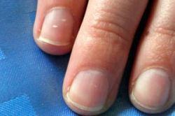 Что может означать белое пятно на ногте?