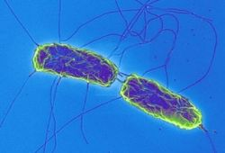 Брюшной тиф: причины, симптомы, лечение