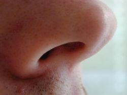 От чего бывает заложен нос, соплей нет?