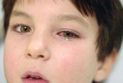 Жжение в глазах: причины и лечение
