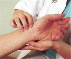 Низкий пульс: причины и способы лечения