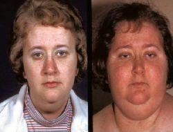 Синдром Кушинга: симптомы, причины и лечение