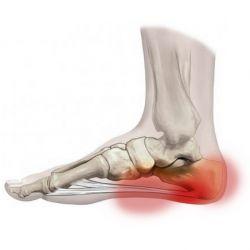 Народные способы лечения шпоры на ногах
