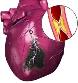 Инфаркт миокарда: симптомы и причины
