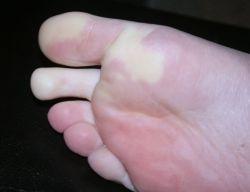 Болезнь Рейно: причины, симптомы, лечение