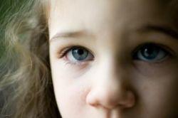 Круги под глазами у детей: мамам на заметку
