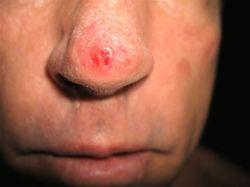 Как устранить красное пятно на носу: советы специалиста