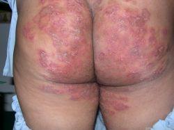 Паховый грибок: причины, симптомы и методы лечения
