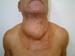 Рак щитовидной железы: симптомы, причины, прогноз