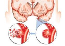 Микроинсульт: симптомы и причины заболевания