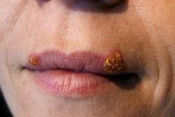 Как лечить простуду на губах: основные способы