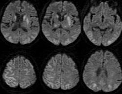 Гипоксия головного мозга: причины, симптомы, лечение
