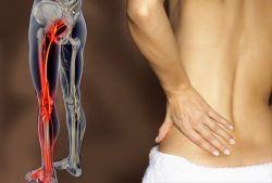Ущемление седалищного нерва: причины, симптомы и методы лечения