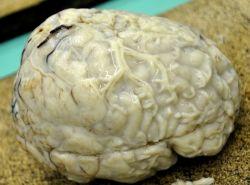 Гнойный менингит: что это такое. Как проявляется, как лечить