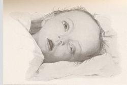 Симптомы менингита у детей: что должно насторожить родителей