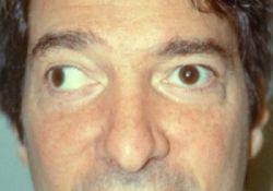 Менингит: последствия, которые могут проявиться после гнойного или серозного воспаления оболочки мозга