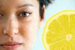 Позаботимся о своей красоте и молодости: причины пигментации на лице
