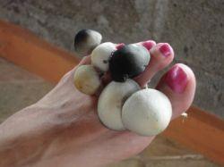Как быстро и эффективно вылечить грибок ногтей
