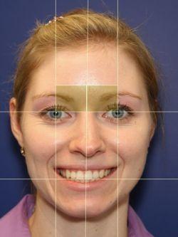 Асимметрия лица: причины и лечение
