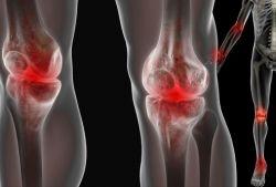 Боль в суставах: как от нее избавиться?