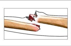 Стандарты лечения ринита у детей