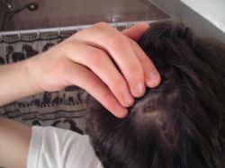 Коросты на голове, лице и в носу: причины возникновения и способы лечения