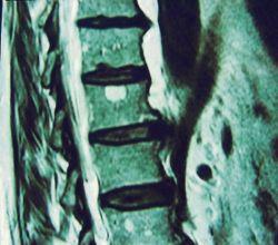 Что такое гемангиома позвонка и как ее лечить?