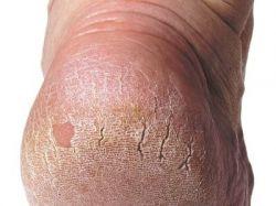 Трещины на пятках: лечение, симптомы