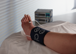 Облитерирующий эндартериит: причины, симптомы, лечение