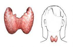 Гипотиреоз щитовидной железы. Симптомы заболевания