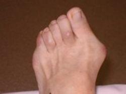 Как и отчего возникают шишки на пальцах ног
