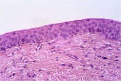 Соединительная ткань, ее строение, функции, заболевания