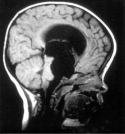 Киста головного мозга: лечение, симптомы и последствия