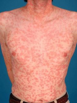 Сифилис: признаки болезни и ее предупреждение