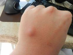 Шишка на руке: возможные причины появления