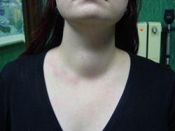 Зоб щитовидной железы: симптомы и причины возникновения