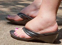 Отечность ног: причины и способы устранения