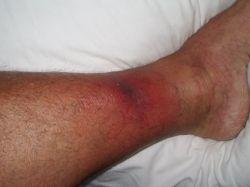 Стафилококковая инфекция: группа риска