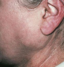 Сиаладенит (воспаление слюнной железы): причины, клиническая картина и лечение