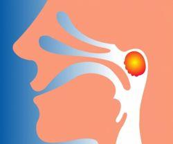 Как проявляются и лечатся аденоиды 2 степени
