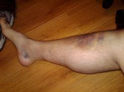 От чего бывает гематома на ноге?