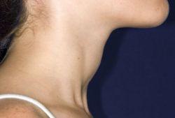 Щитовидная железа: признаки заболевания, лечение