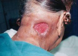 Лечение гнойных ран: фазы, методы, препараты