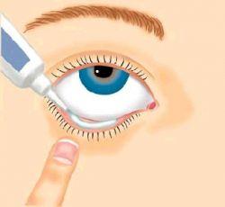 Лекарство «Мазь тетрациклиновая» (глазная): инструкция по применению