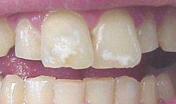 Для современной стоматологии белые пятна на зубах - не проблема