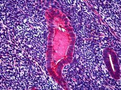 убивает ли химиотерапия паразитов в организме