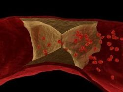 Волчаночный антикоагулянт. Причины повышения его уровня в крови, анализ и его результаты