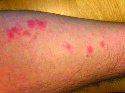 мазь снимающая зуд при аллергии