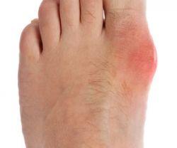 Как лечить косточки на ногах. Оперативный способ лечения. Лечение народными средствами